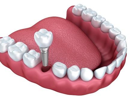 implanty zębów grafika - Centrum Stomatologiczne Demed