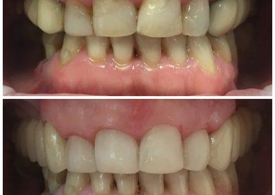 Demed odbudowy estetyczne poprawa wyglądu górnych zębów