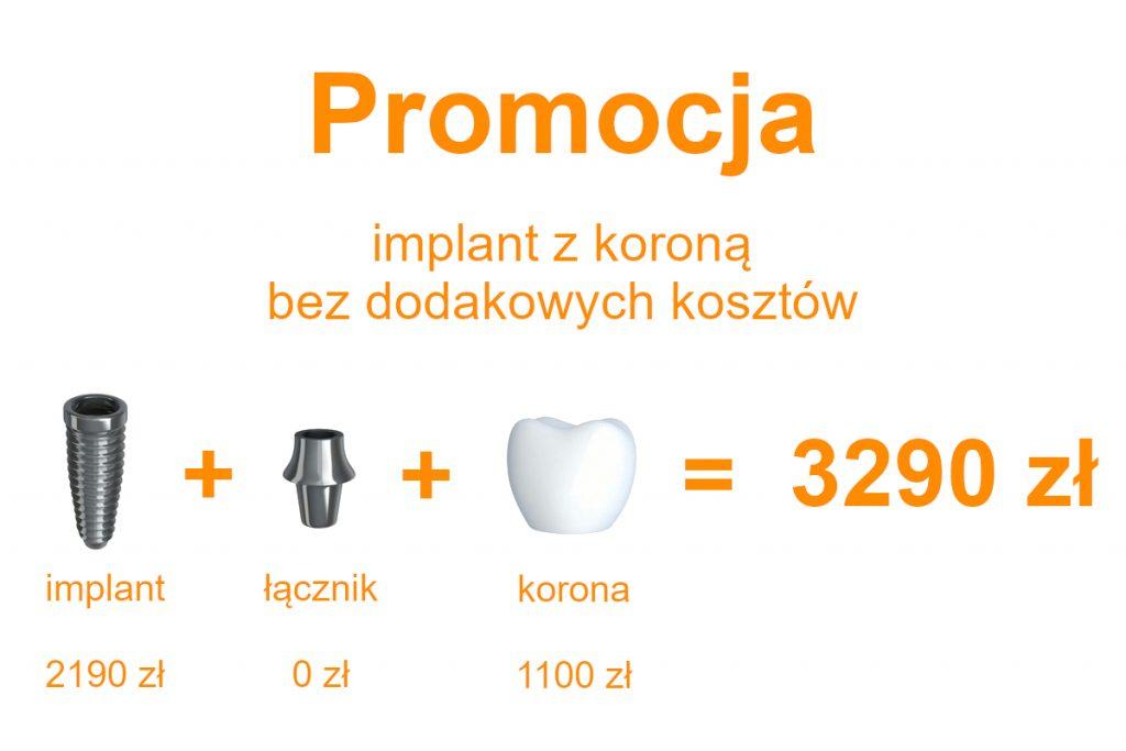 implant z korona promocja 3290 zł